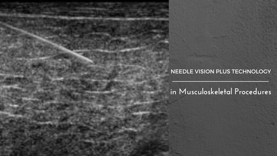 Scaling new frontiers with Needle Vision Technology